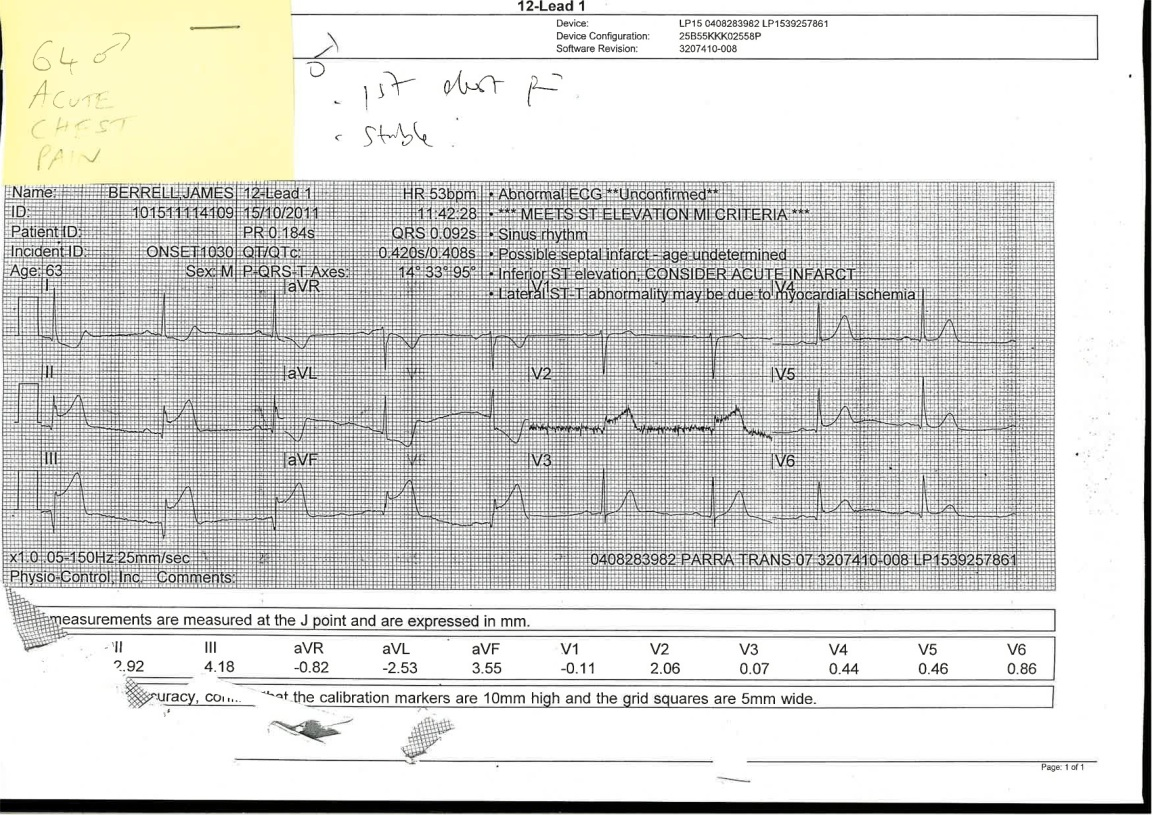 Faxed ECG from and Ambulance - Their patient has Severe Chest Pain and a history of smoking