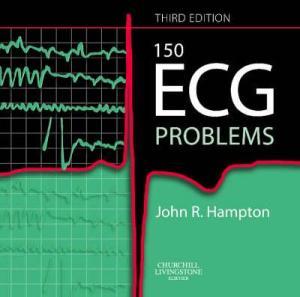 ECG 3