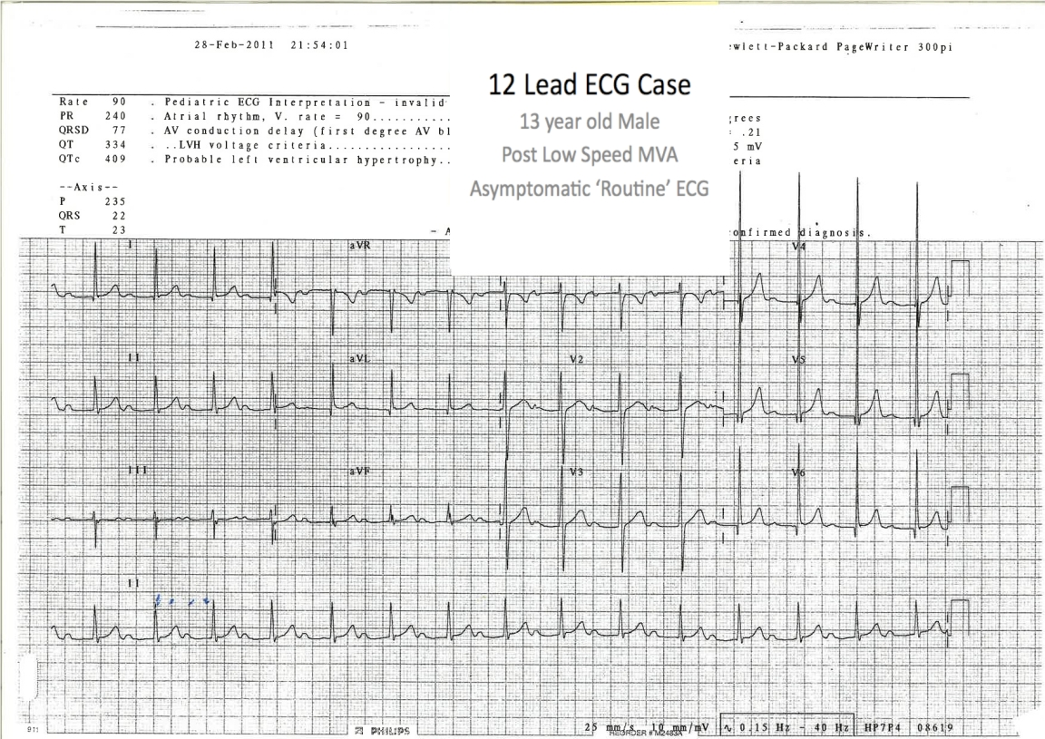A Repeat ECG - the patient remains asymptomatic