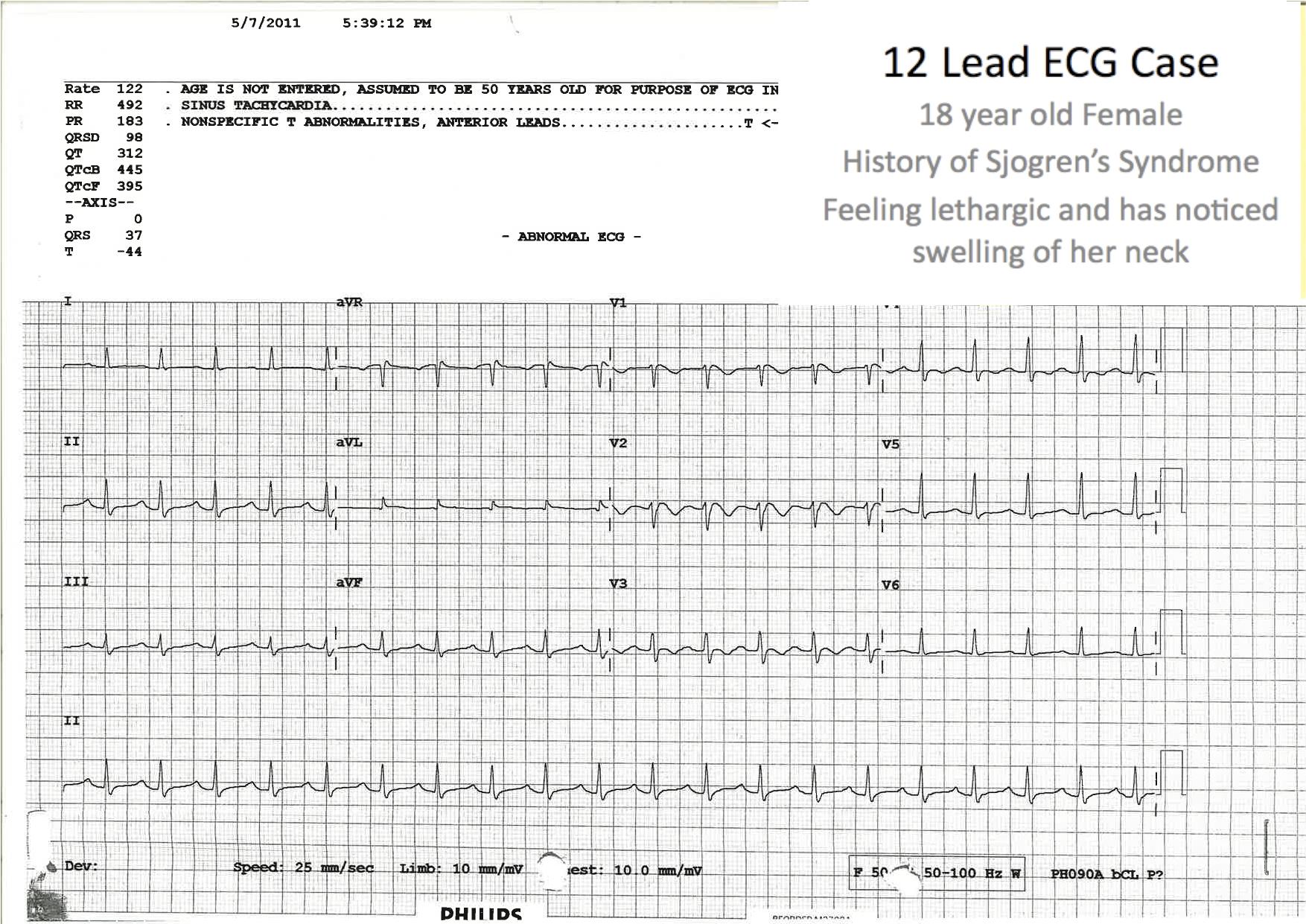 Ecg Cases Emergencypedia