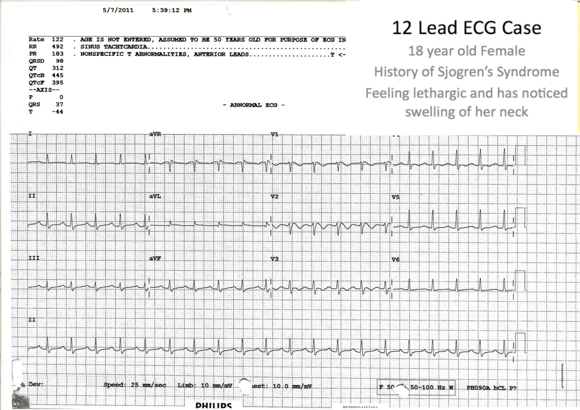 ECG showing Sinus Tachycardia, QT prolongation and T wave inversions - The serum K was 2.3