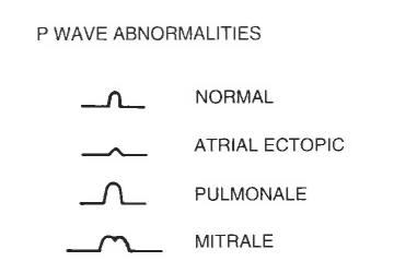 Types of P Wave