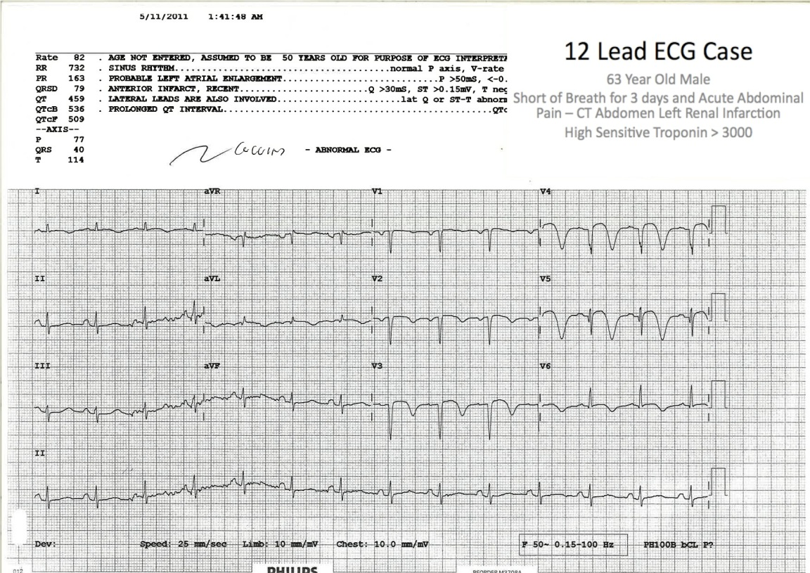 Striking T Wave Inversion suggestive of Wellen's Syndrome