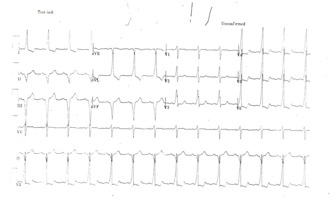 Underlying WPW seen on Repeat 12 Lead ECG
