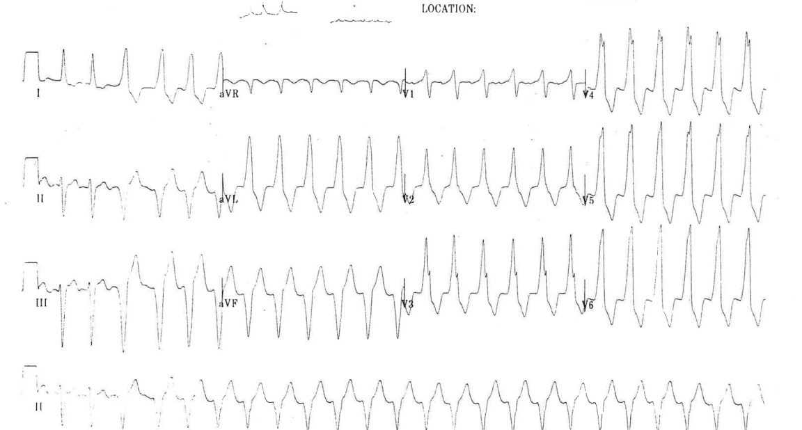 WPW with Palpitations