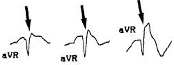 Progressive Dominant R waves in AVR