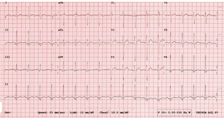 20 year old with Chest Pain