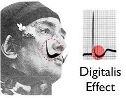 Digitalis ECG