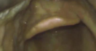 Visulise the Epiglottis